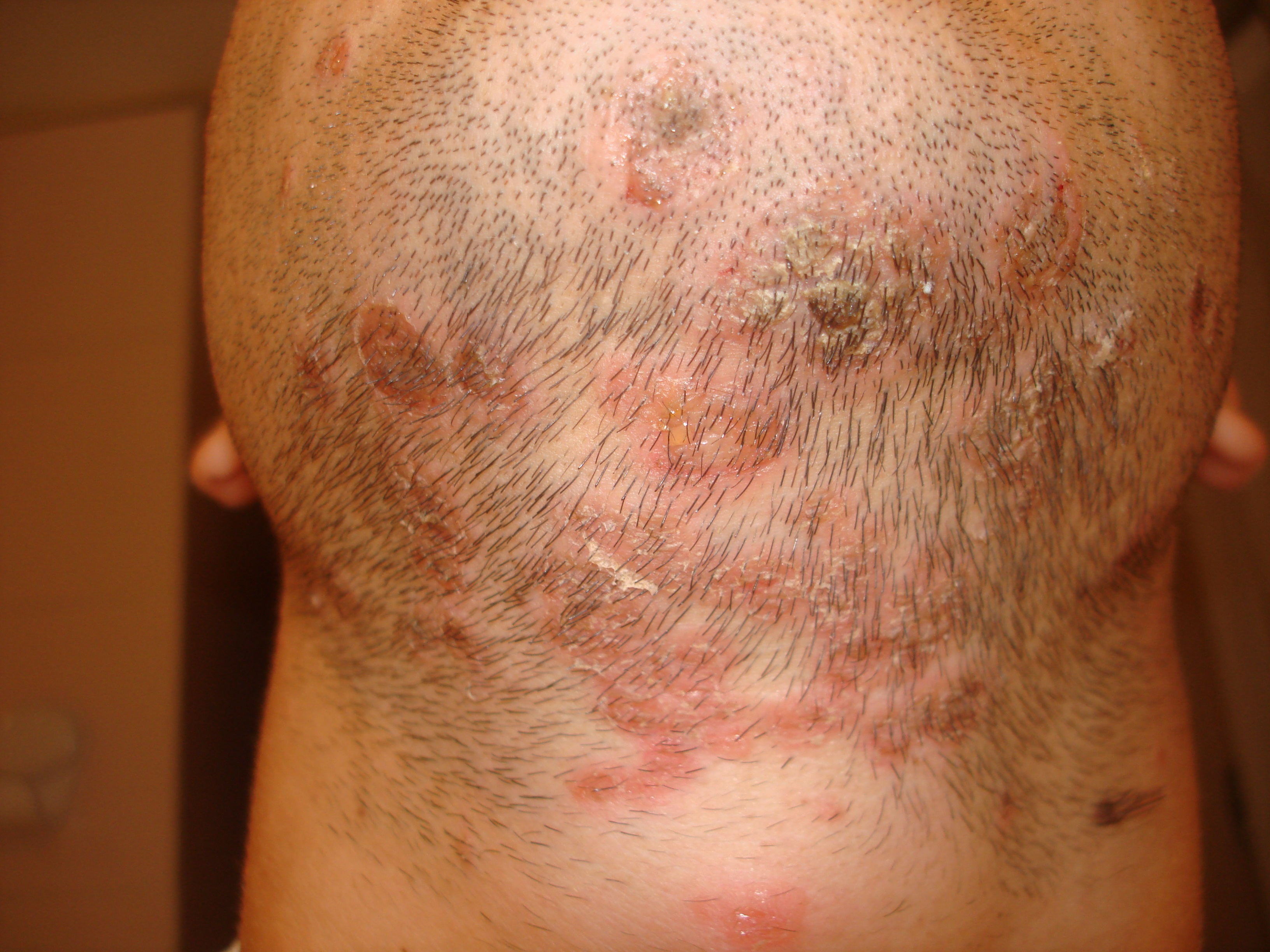 Выпадение волос шампунь отзывы