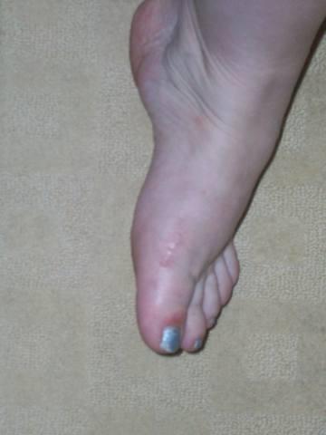 Что делать если косточки на ногах