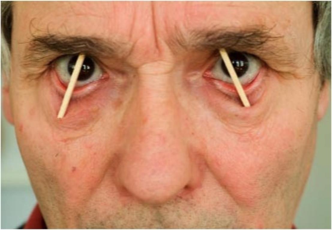 Как сделать чтобы глаза не были сонными