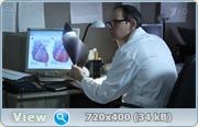 Лист ожидания (2012) HDTVRip  + WEB-DLRip