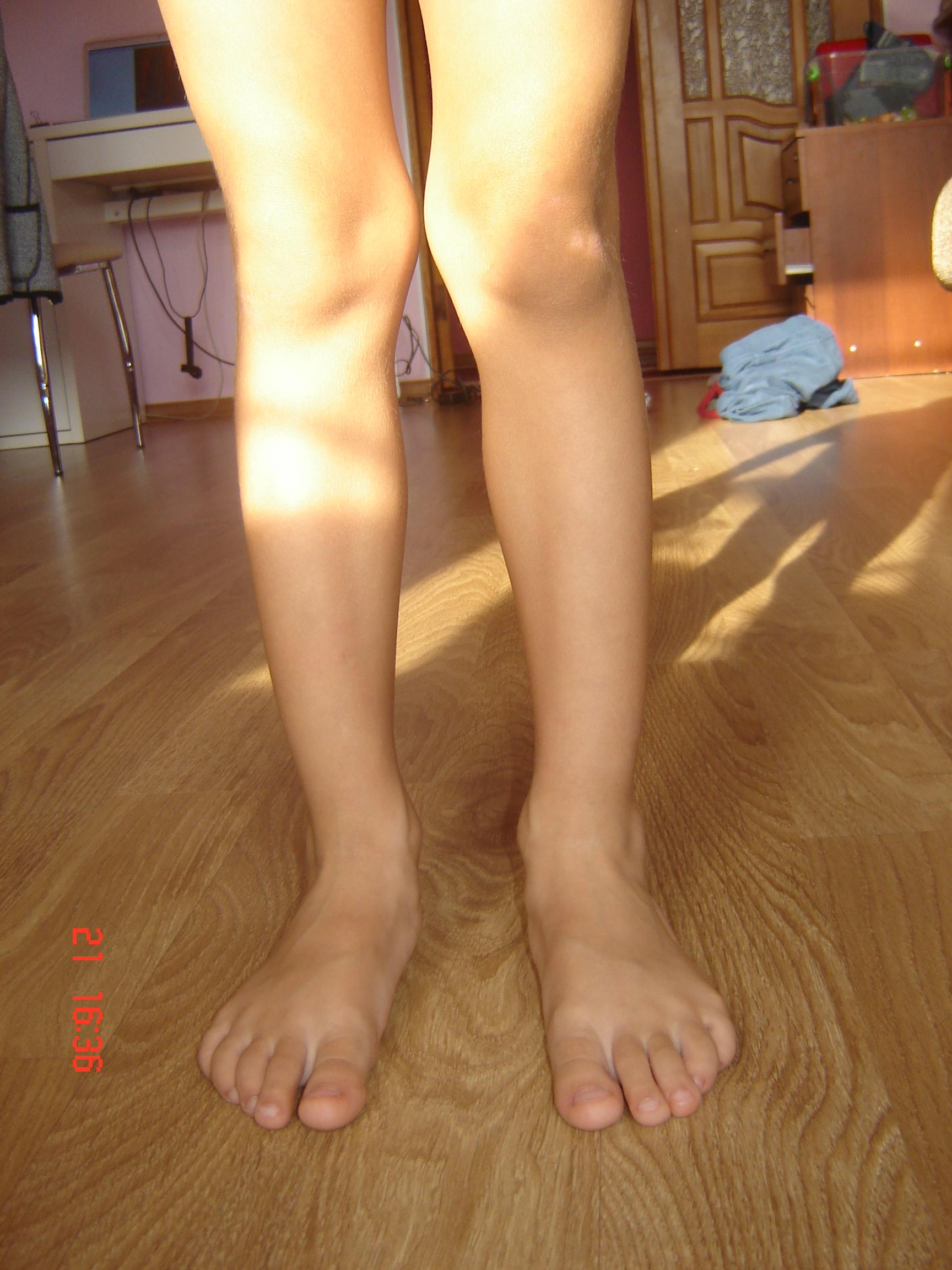 Вальгусная стоп у детей фото