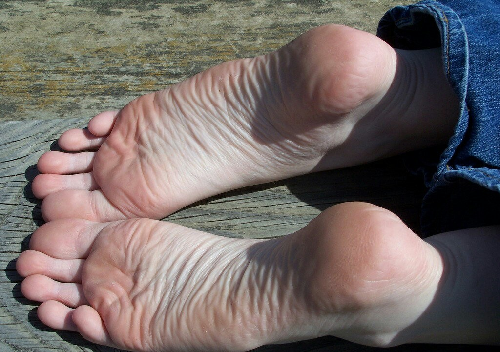 Long hairy toes
