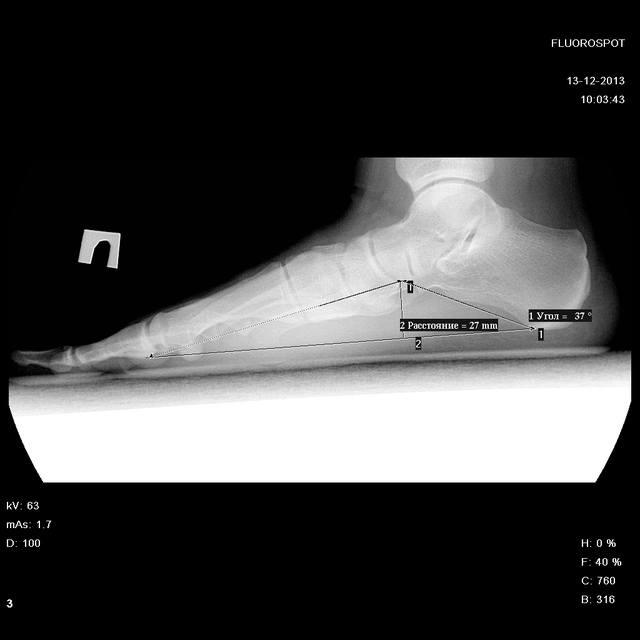 Как сделать рентген при плоскостопии