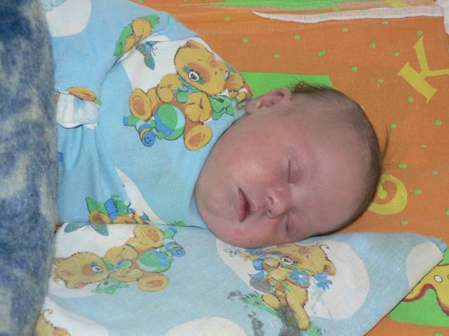 Форма головы ребенка фото