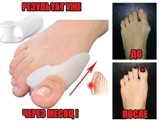 Болит косточка на ноге около большого пальца причины лечение и последствия