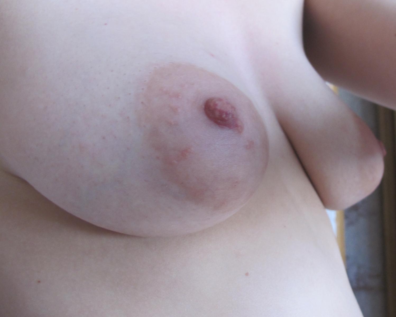 Фото некрасивой женской груди 5 фотография