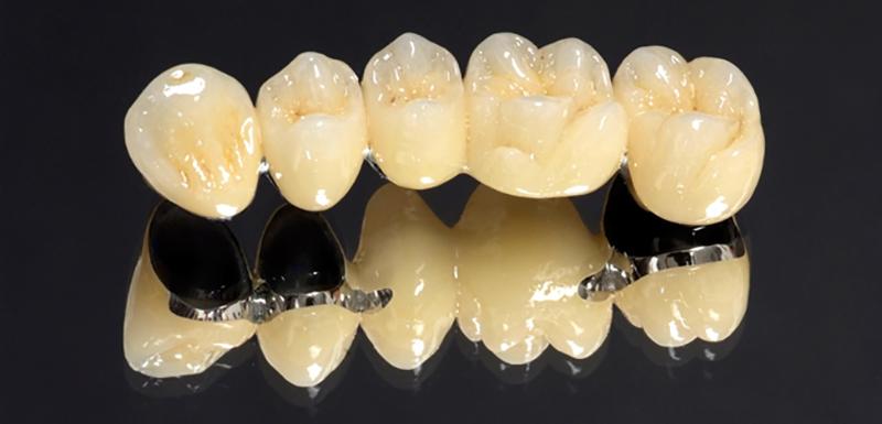 Коронка на зуб челябинск цена