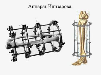 http://images.vfl.ru/ii/1506057645/5b54ebe1/18690086.jpg