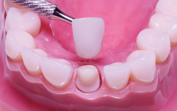 Реставрация зубов. Какие методы и технологии эффективны?
