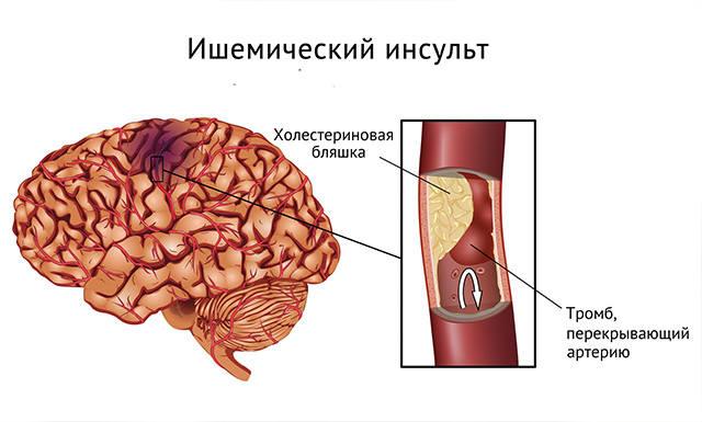 http://images.vfl.ru/ii/1530970241/c908bfc4/22391912_m.jpg