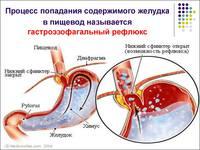 http://images.vfl.ru/ii/1563211252/5aa5fa03/27217300_s.jpg