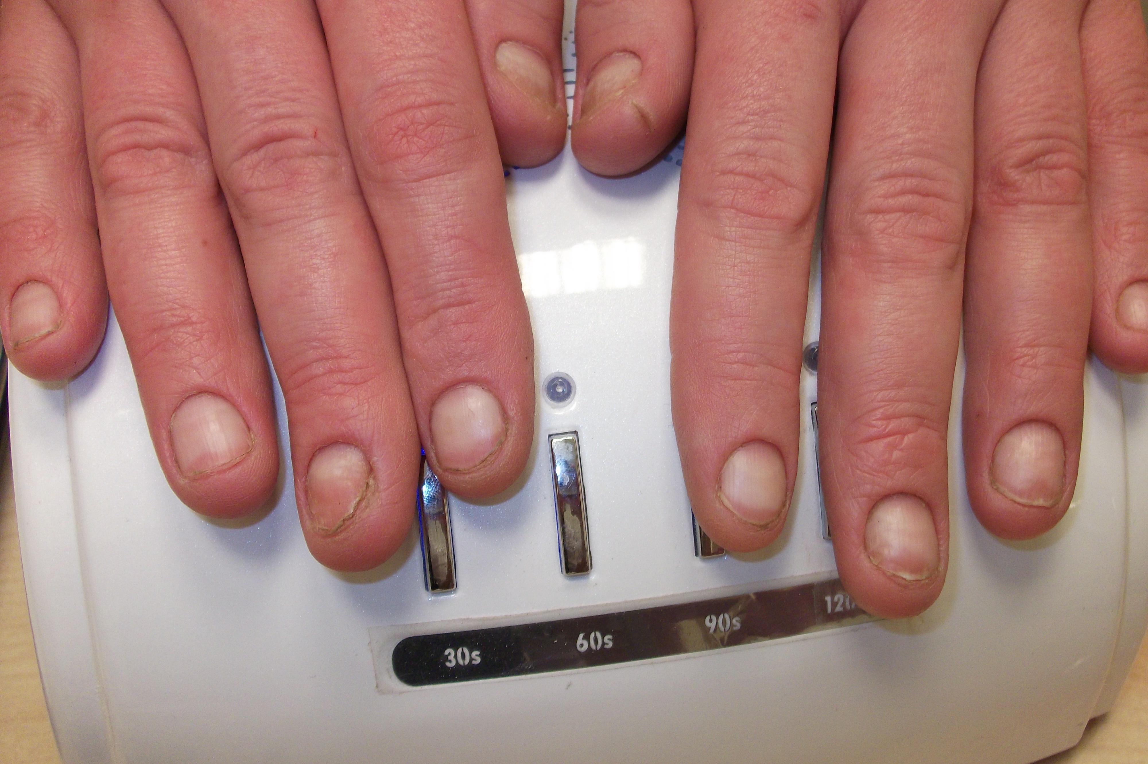 Грибок ногтей: можно ли делать