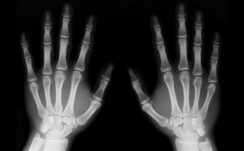 radiografia-1024x636